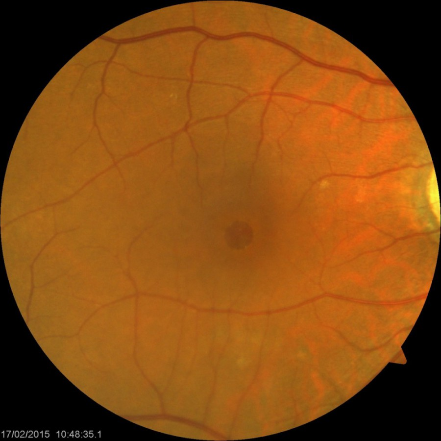 macular hole cataract eye retina specialist surgeon dr loh boon