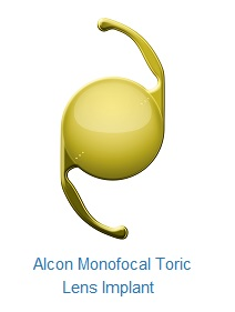 Monofocal Toric Lens Implant (Alcon)